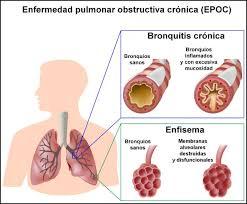 Fisioterapia respiratoria en pacientes con EPOC