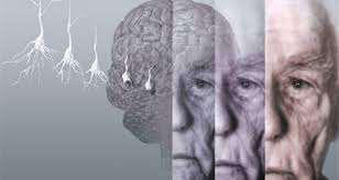 Enfermedad neurodegenerativa y alimentación